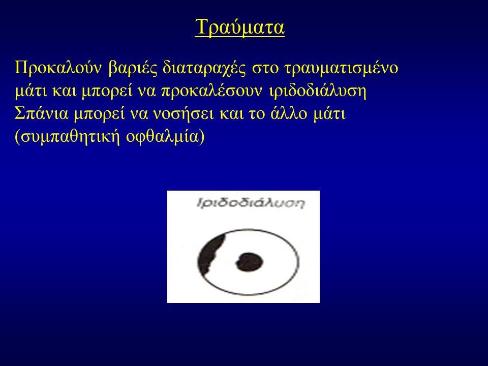 Τραύματα Προκαλούν βαριές διαταραχές στο τραυματισμένο μάτι και μπορεί να προκαλέσουν ιριδοδιάλυση Σπάνια μπορεί να νοσήσει και το άλλο μάτι (συμπαθητική οφθαλμία)