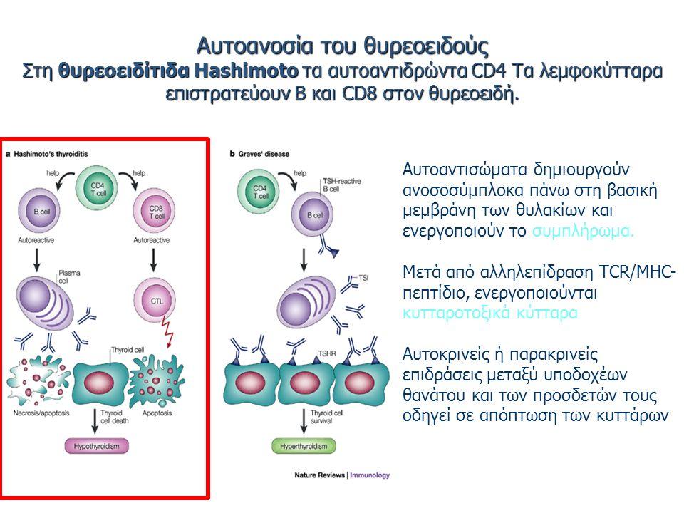 Αυτοανοσία του θυρεοειδούς Στη θυρεοειδίτιδα Hashimoto τα αυτοαντιδρώντα CD4 Τα λεμφοκύτταρα επιστρατεύουν Β και CD8 στον θυρεοειδή.