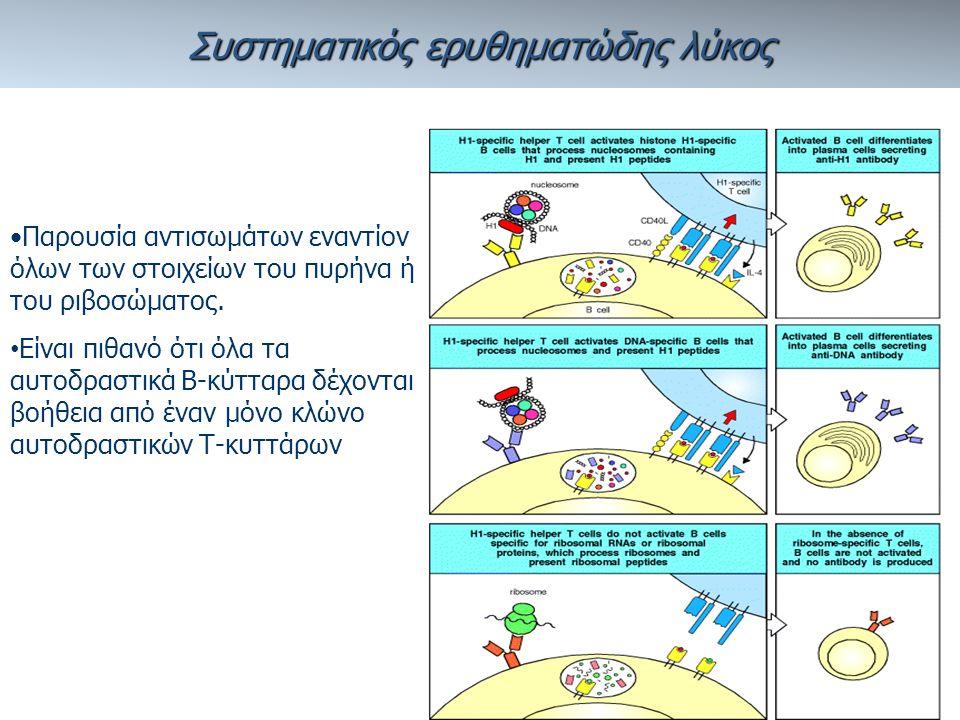 Συστηματικός ερυθηματώδης λύκος Παρουσία αντισωμάτων εναντίον όλων των στοιχείων του πυρήνα ή του ριβοσώματος.