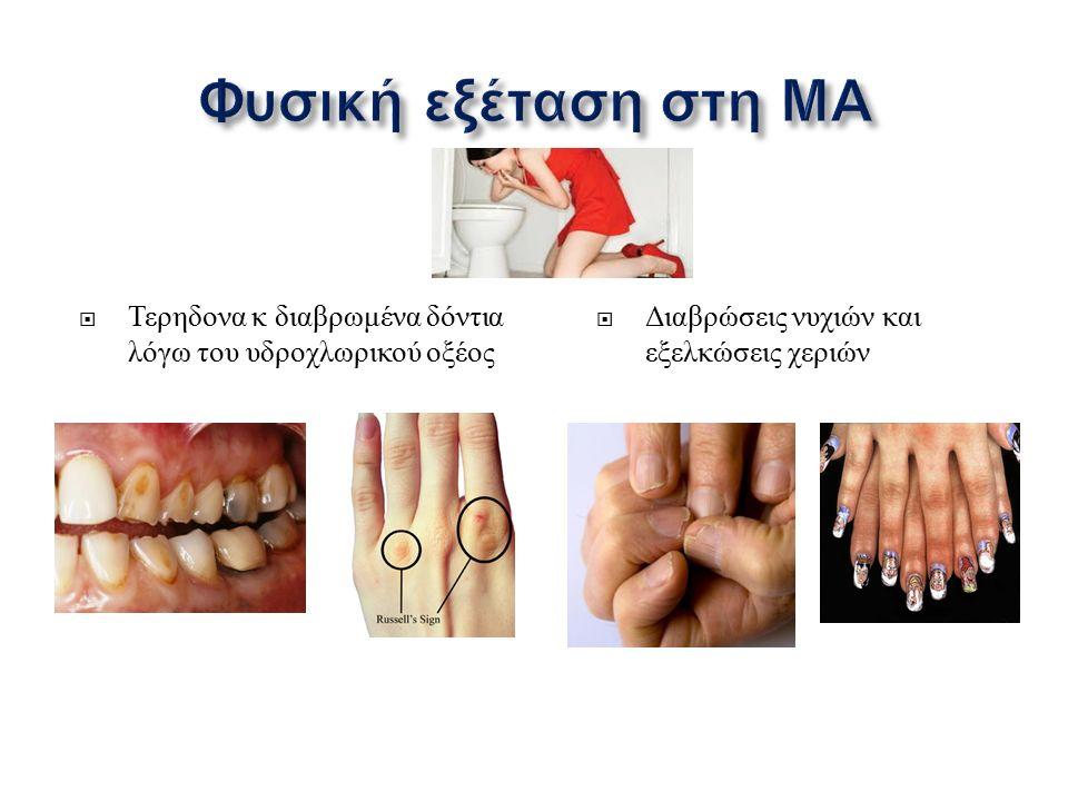  Τερηδονα κ διαβρωμένα δόντια λόγω του υδροχλωρικού οξέος  Διαβρώσεις νυχιών και εξελκώσεις χεριών
