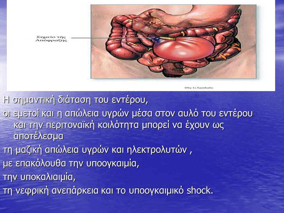 Η σημαντική διάταση του εντέρου, οι εμετοί και η απώλεια υγρών μέσα στον αυλό του εντέρου και την περιτοναϊκή κοιλότητα μπορεί να έχουν ως αποτέλεσμα τη μαζική απώλεια υγρών και ηλεκτρολυτών, με επακόλουθα την υποογκαιμία, την υποκαλιαιμία, τη νεφρική ανεπάρκεια και το υποογκαιμικό shock.
