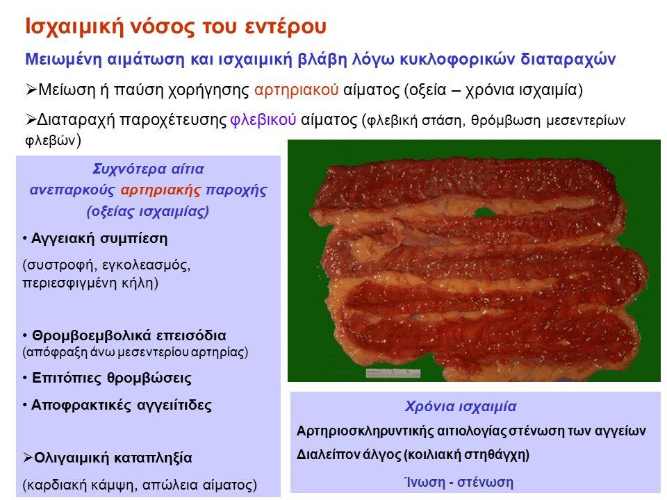 Ισχαιμική νόσος του εντέρου Μειωμένη αιμάτωση και ισχαιμική βλάβη λόγω κυκλοφορικών διαταραχών  Μείωση ή παύση χορήγησης αρτηριακού αίματος (οξεία – χρόνια ισχαιμία)  Διαταραχή παροχέτευσης φλεβικού αίματος ( φλεβική στάση, θρόμβωση μεσεντερίων φλεβών ) Συχνότερα αίτια ανεπαρκούς αρτηριακής παροχής (οξείας ισχαιμίας) Αγγειακή συμπίεση (συστροφή, εγκολεασμός, περιεσφιγμένη κήλη) Θρομβοεμβολικά επεισόδια (απόφραξη άνω μεσεντερίου αρτηρίας) Επιτόπιες θρομβώσεις Αποφρακτικές αγγειίτιδες  Ολιγαιμική καταπληξία (καρδιακή κάμψη, απώλεια αίματος) Χρόνια ισχαιμία Αρτηριοσκληρυντικής αιτιολογίας στένωση των αγγείων Διαλείπον άλγος (κοιλιακή στηθάγχη) Ίνωση - στένωση