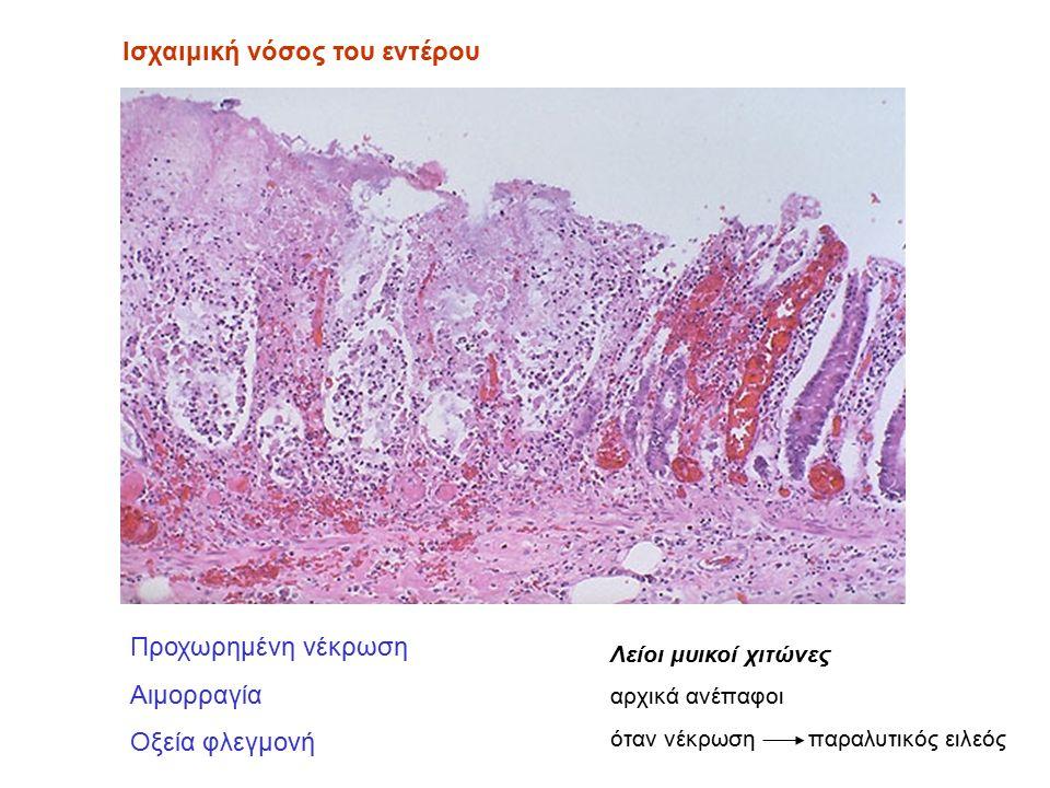 Ισχαιμική νόσος του εντέρου Προχωρημένη νέκρωση Αιμορραγία Οξεία φλεγμονή Λείοι μυικοί χιτώνες αρχικά ανέπαφοι όταν νέκρωση παραλυτικός ειλεός