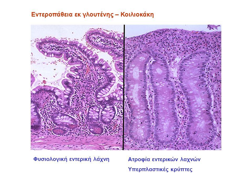 Ατροφία εντερικών λαχνών Υπερπλαστικές κρύπτες Εντεροπάθεια εκ γλουτένης – Κοιλιοκάκη Φυσιολογική εντερική λάχνη