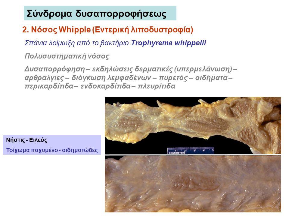 2. Νόσος Whipple (Εντερική λιποδυστροφία) Σπάνια λοίμωξη από το βακτήριο Trophyrema whippelii Πολυσυστηματική νόσος Δυσαπορρόφηση – εκδηλώσεις δερματι
