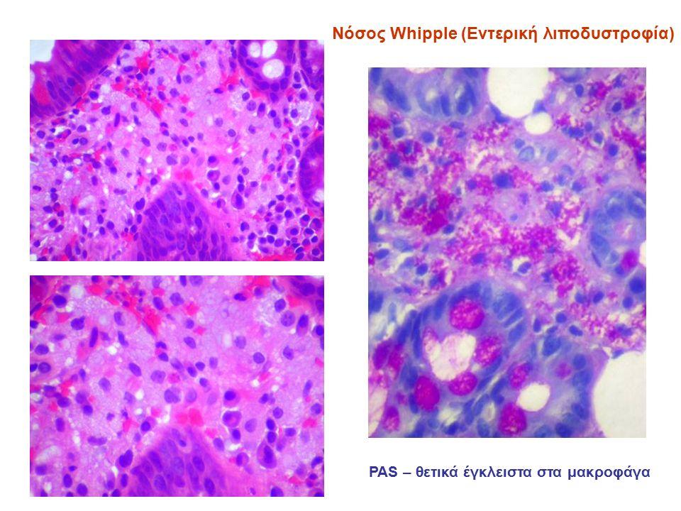 Νόσος Whipple (Εντερική λιποδυστροφία) ΡΑS – θετικά έγκλειστα στα μακροφάγα