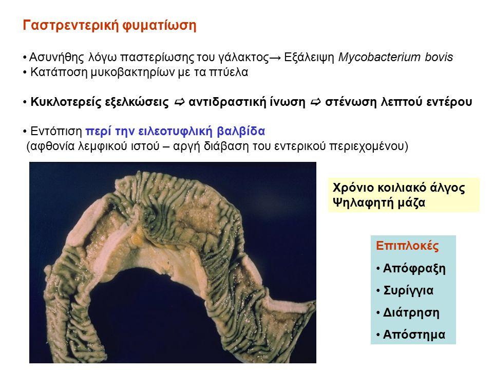Γαστρεντερική φυματίωση Ασυνήθης λόγω παστερίωσης του γάλακτος→ Εξάλειψη Mycobacterium bovis Κατάποση μυκοβακτηρίων με τα πτύελα Κυκλοτερείς εξελκώσεις  αντιδραστική ίνωση  στένωση λεπτού εντέρου Εντόπιση περί την ειλεοτυφλική βαλβίδα (αφθονία λεμφικού ιστού – αργή διάβαση του εντερικού περιεχομένου) Επιπλοκές Απόφραξη Συρίγγια Διάτρηση Απόστημα Χρόνιο κοιλιακό άλγος Ψηλαφητή μάζα