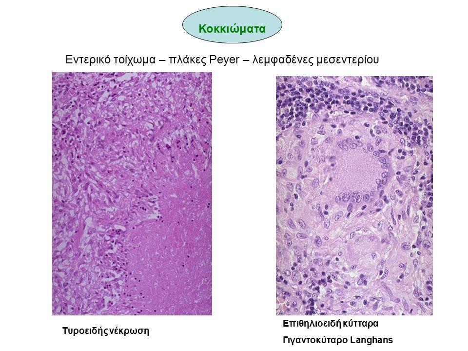 Tυροειδής νέκρωση Επιθηλιοειδή κύτταρα Γιγαντοκύταρο Langhans Εντερικό τοίχωμα – πλάκες Peyer – λεμφαδένες μεσεντερίου