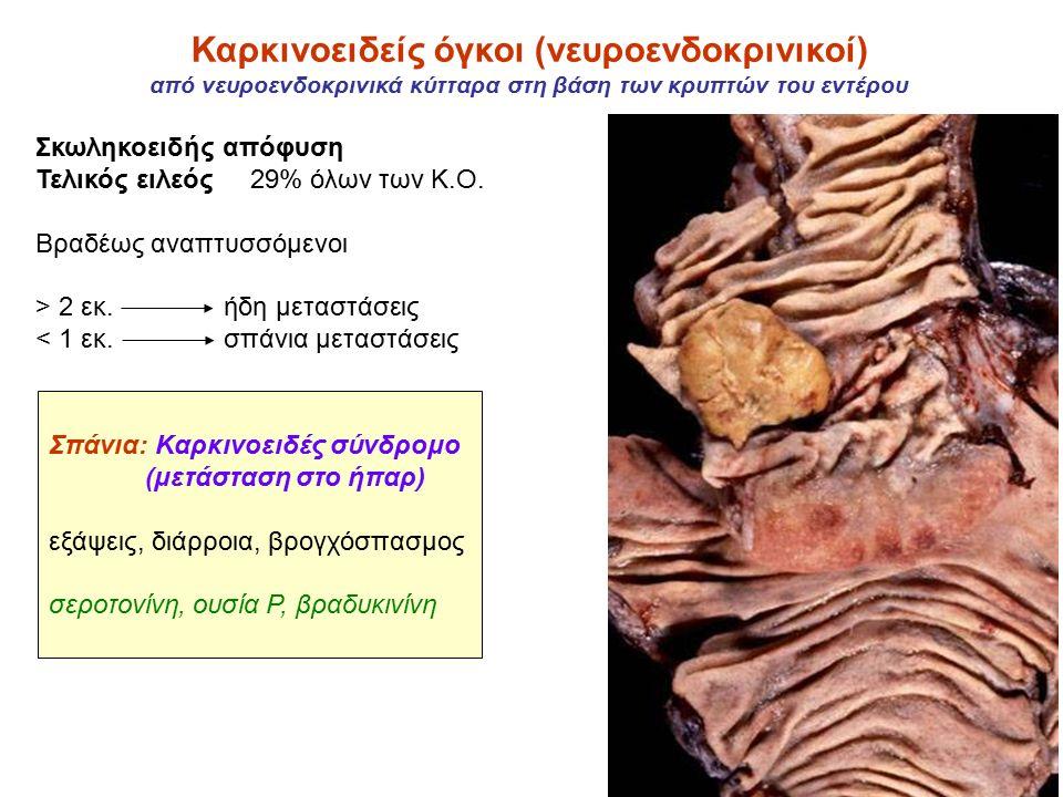 Καρκινοειδείς όγκοι (νευροενδοκρινικοί) από νευροενδοκρινικά κύτταρα στη βάση των κρυπτών του εντέρου Σκωληκοειδής απόφυση Τελικός ειλεός 29% όλων των Κ.Ο.