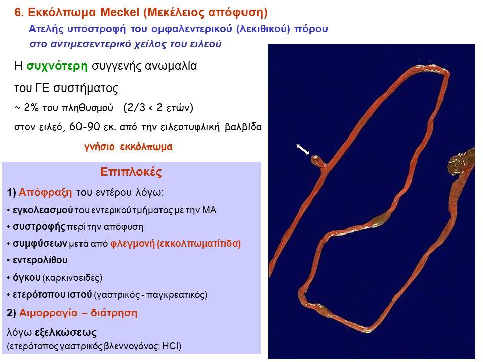 6. Εκκόλπωμα Meckel (Μεκέλειος απόφυση) Ατελής υποστροφή του ομφαλεντερικού (λεκιθικού) πόρου στο αντιμεσεντερικό χείλος του ειλεού Η συχνότερη συγγεν