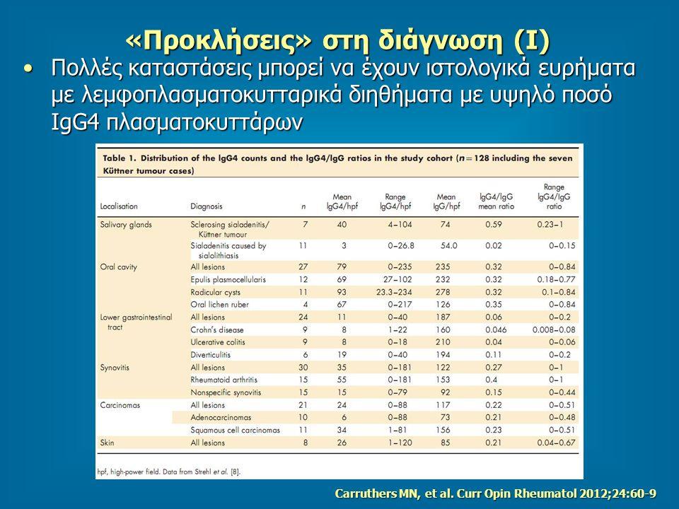 «Προκλήσεις» στη διάγνωση (Ι) Πολλές καταστάσεις μπορεί να έχουν ιστολογικά ευρήματα με λεμφοπλασματοκυτταρικά διηθήματα με υψηλό ποσό IgG4 πλασματοκυττάρωνΠολλές καταστάσεις μπορεί να έχουν ιστολογικά ευρήματα με λεμφοπλασματοκυτταρικά διηθήματα με υψηλό ποσό IgG4 πλασματοκυττάρων Carruthers MN, et al.