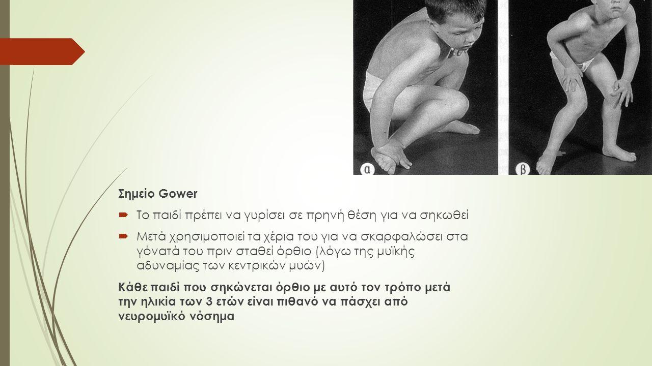 Σημείο Gower  Το παιδί πρέπει να γυρίσει σε πρηνή θέση για να σηκωθεί  Μετά χρησιμοποιεί τα χέρια του για να σκαρφαλώσει στα γόνατά του πριν σταθεί όρθιο (λόγω της μυϊκής αδυναμίας των κεντρικών μυών) Κάθε παιδί που σηκώνεται όρθιο με αυτό τον τρόπο μετά την ηλικία των 3 ετών είναι πιθανό να πάσχει από νευρομυϊκό νόσημα