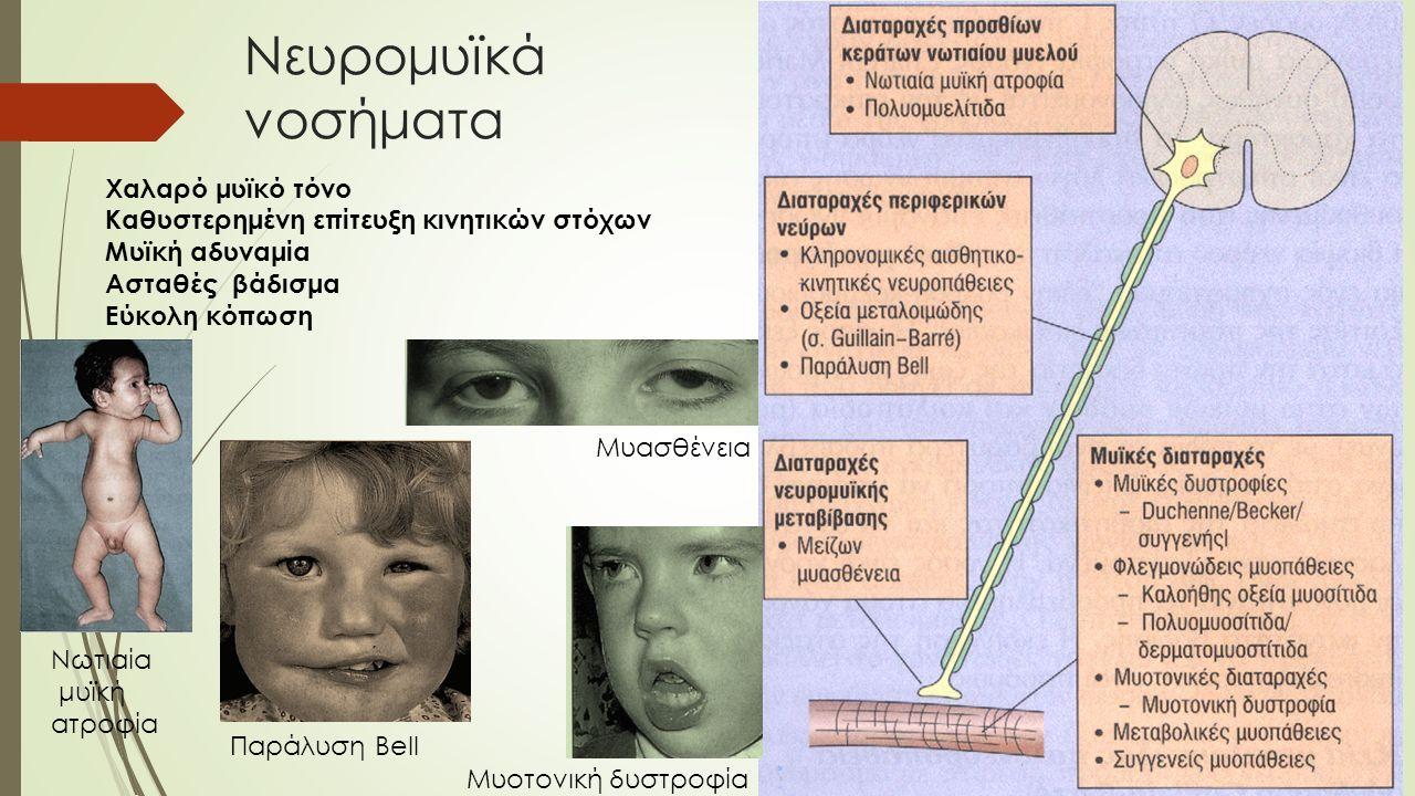 Νευρομυϊκά νοσήματα Χαλαρό μυϊκό τόνο Καθυστερημένη επίτευξη κινητικών στόχων Μυϊκή αδυναμία Ασταθές βάδισμα Εύκολη κόπωση Νωτιαία μυϊκή ατροφία Μυασθένεια Παράλυση Bell Μυοτονική δυστροφία