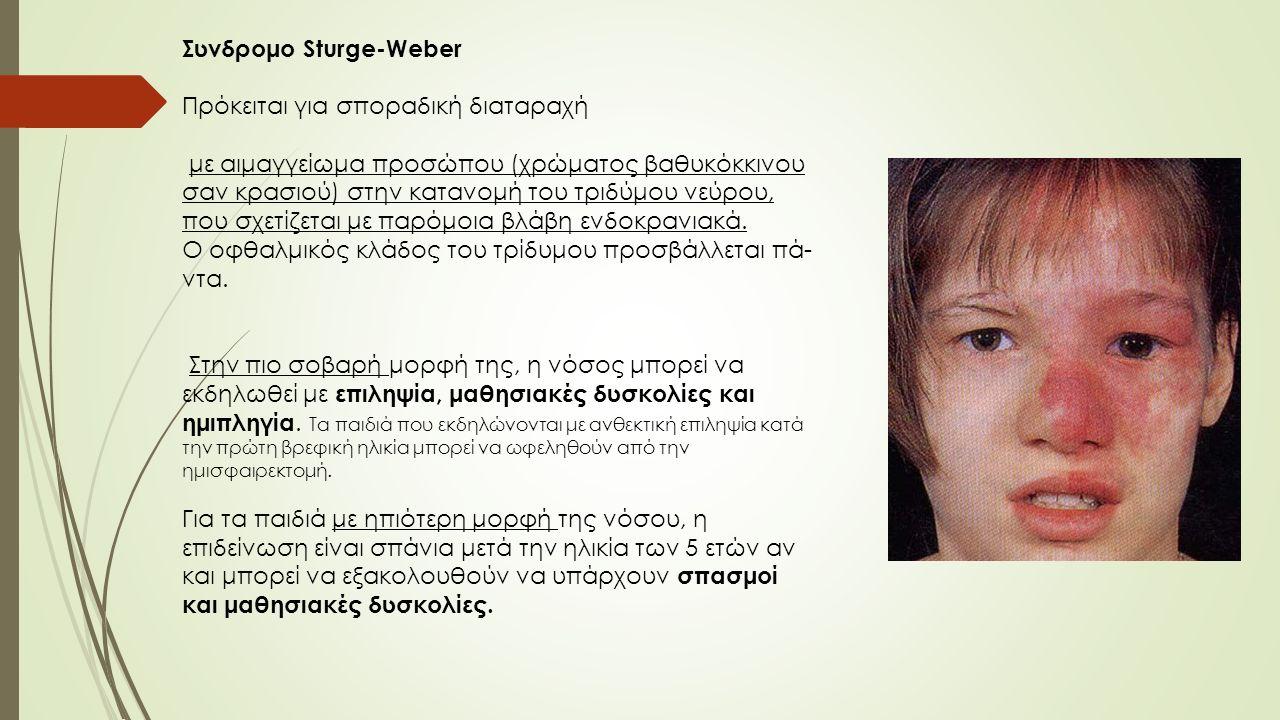 Συνδρομο Sturge-Weber Πρόκειται για σποραδική διαταραχή με αιμαγγείωμα προσώπου (χρώματος βαθυκόκκινου σαν κρασιού) στην κατανομή του τριδύμου νεύρου, που σχετίζεται με παρόμοια βλάβη ενδοκρανιακά.