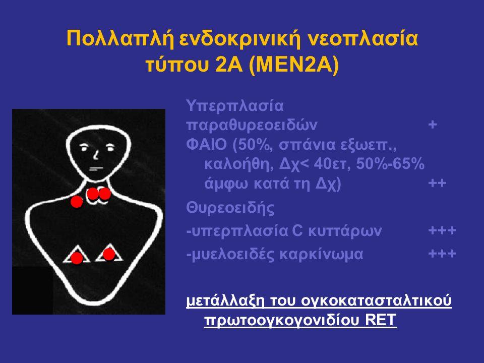 Πολλαπλή ενδοκρινική νεοπλασία τύπου 2Α (MEN2Α) Υπερπλασία παραθυρεοειδών + ΦΑΙΟ (50%, σπάνια εξωεπ., καλοήθη, Δχ< 40ετ, 50%-65% άμφω κατά τη Δχ)++ Θυ