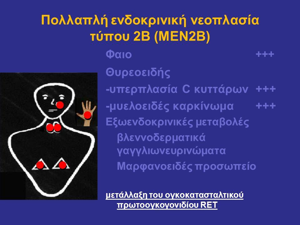 Πολλαπλή ενδοκρινική νεοπλασία τύπου 2Β (MEN2Β) Φαιο +++ Θυρεοειδής -υπερπλασία C κυττάρων +++ -μυελοειδές καρκίνωμα+++ Εξωενδοκρινικές μεταβολές βλεν