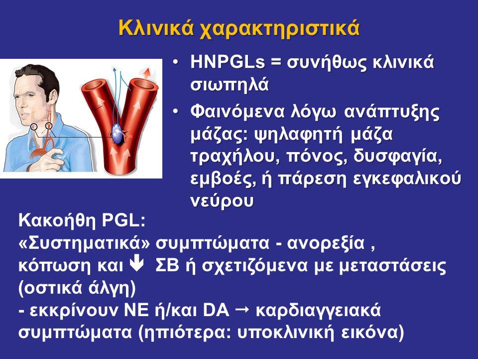 HNPGLs = συνήθως κλινικά σιωπηλάHNPGLs = συνήθως κλινικά σιωπηλά Φαινόμενα λόγω ανάπτυξης μάζας: ψηλαφητή μάζα τραχήλου, πόνος, δυσφαγία, εμβοές, ή πά