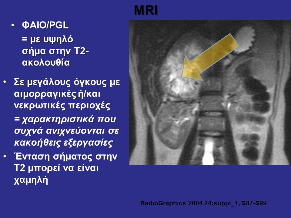 MRI ΦΑΙΟ/PGLΦΑΙΟ/PGL = με υψηλό σήμα στην Τ2- ακολουθία RadioGraphics 2004 24:suppl_1, S87-S99 Σε μεγάλους όγκους με αιμορραγικές ή/και νεκρωτικές περ