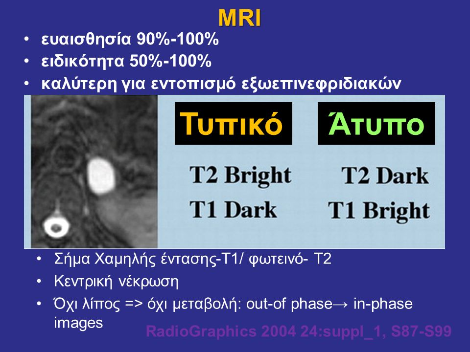 MRI RadioGraphics 2004 24:suppl_1, S87-S99 ΤυπικόΆτυπο Σήμα Χαμηλής έντασης-Τ1/ φωτεινό- Τ2 Κεντρική νέκρωση Όχι λίπος => όχι μεταβολή: out-of phase→ in-phase images ευαισθησία 90%-100% ειδικότητα 50%-100% καλύτερη για εντοπισμό εξωεπινεφριδιακών