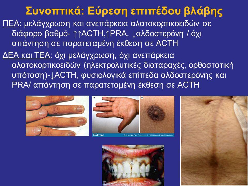 ΠΕΑ: μελάγχρωση και ανεπάρκεια αλατοκορτικοειδών σε διάφορο βαθμό- ↑↑ACTH,↑PRA, ↓αλδοστερόνη / όχι απάντηση σε παρατεταμένη έκθεση σε ACTH ΔΕΑ και ΤΕΑ