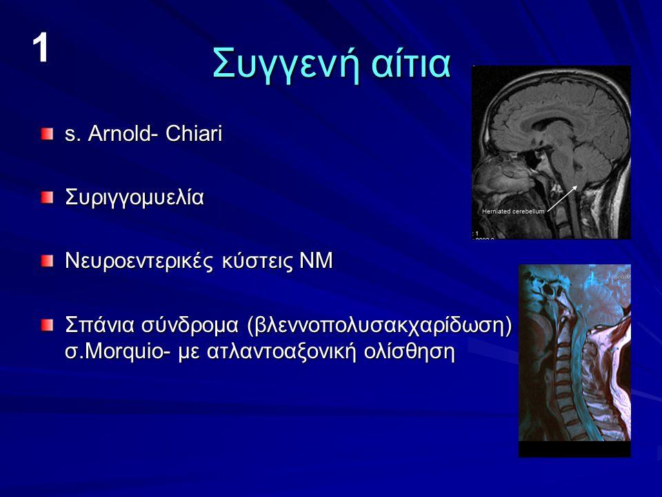 8. Αυτοάνοσα αίτια Εγκάρσια μυελίτιδα MS Devic syndrome Post viral