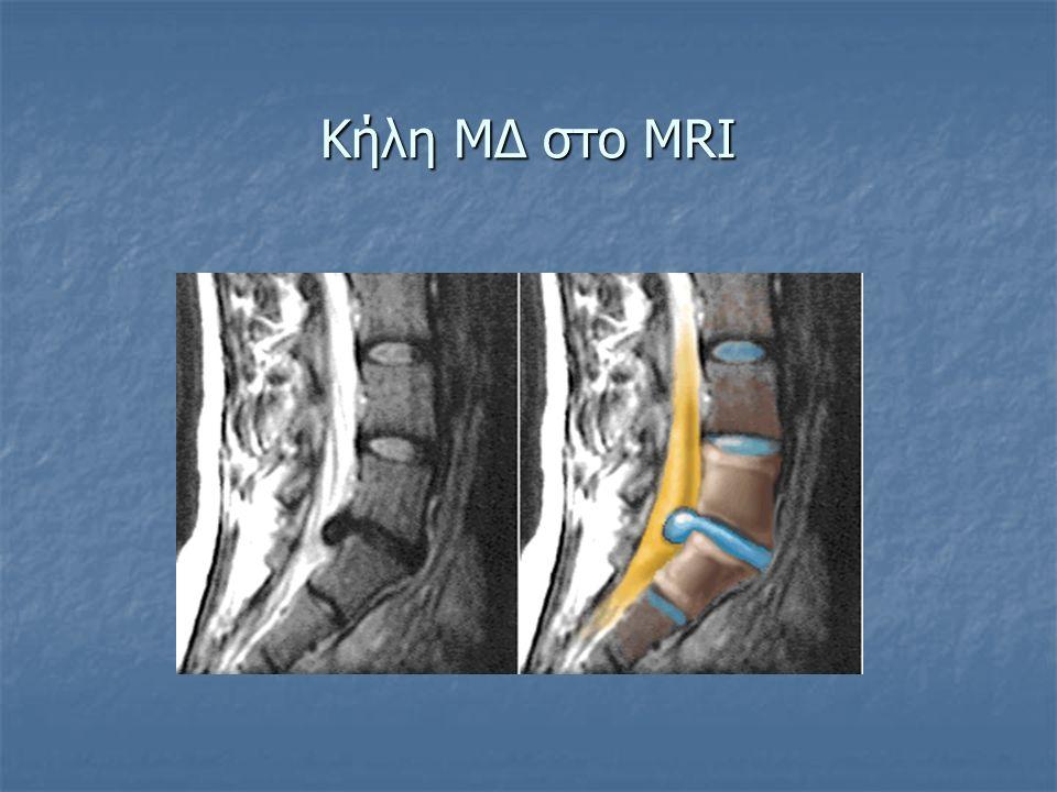 Κήλη ΜΔ στο MRI