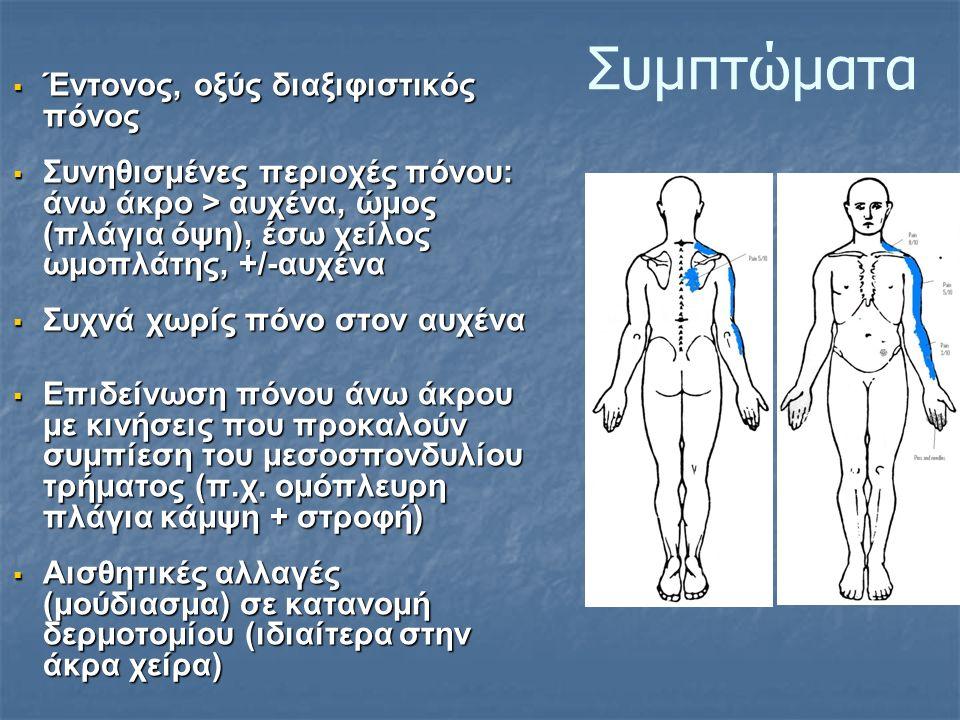 Συμπτώματα  Έντονος, οξύς διαξιφιστικός πόνος  Συνηθισμένες περιοχές πόνου: άνω άκρο > αυχένα, ώμος (πλάγια όψη), έσω χείλος ωμοπλάτης, +/-αυχένα  Συχνά χωρίς πόνο στον αυχένα  Επιδείνωση πόνου άνω άκρου με κινήσεις που προκαλούν συμπίεση του μεσοσπονδυλίου τρήματος (π.χ.