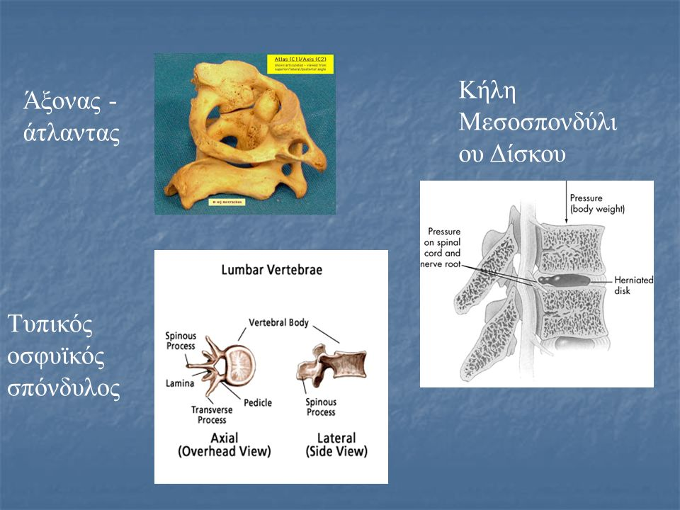 Άξονας - άτλαντας Τυπικός οσφυϊκός σπόνδυλος Κήλη Μεσοσπονδύλι ου Δίσκου