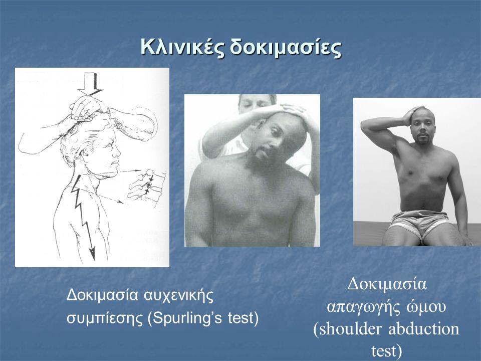 Κλινικές δοκιμασίες Δοκιμασία αυχενικής συμπίεσης (Spurling's test) Δοκιμασία απαγωγής ώμου (shoulder abduction test)