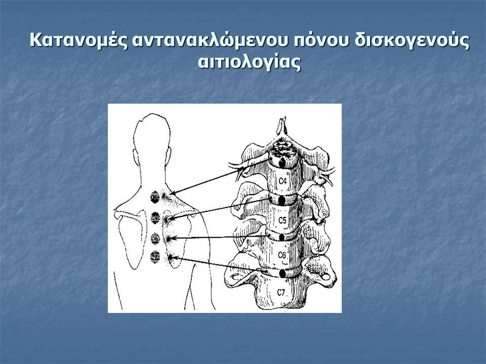 Κατανομές αντανακλώμενου πόνου δισκογενούς αιτιολογίας