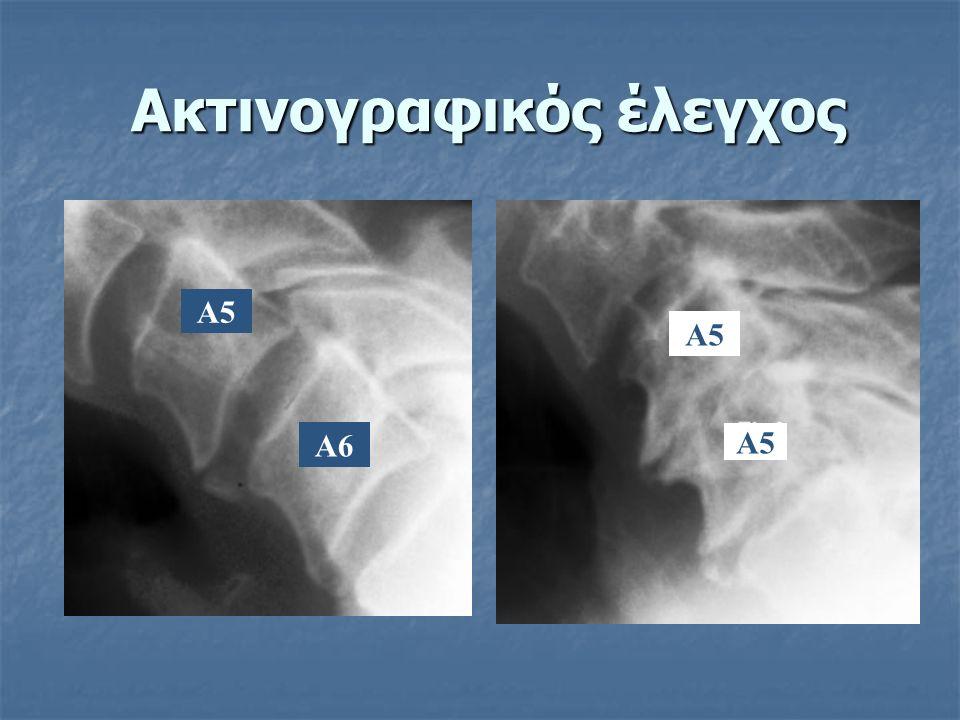 Ακτινογραφικός έλεγχος Α5 Α6