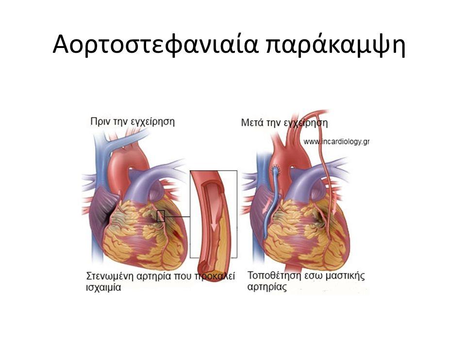 Αορτοστεφανιαία παράκαμψη