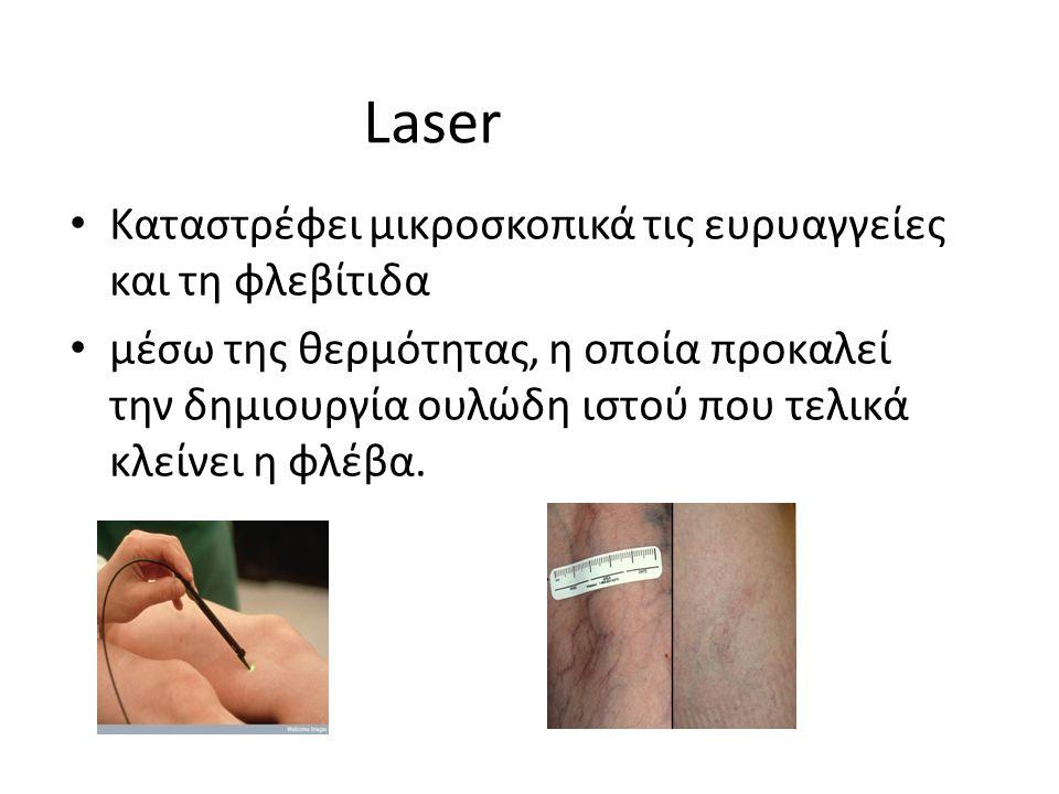 Laser Καταστρέφει μικροσκοπικά τις ευρυαγγείες και τη φλεβίτιδα μέσω της θερμότητας, η οποία προκαλεί την δημιουργία ουλώδη ιστού που τελικά κλείνει η φλέβα.