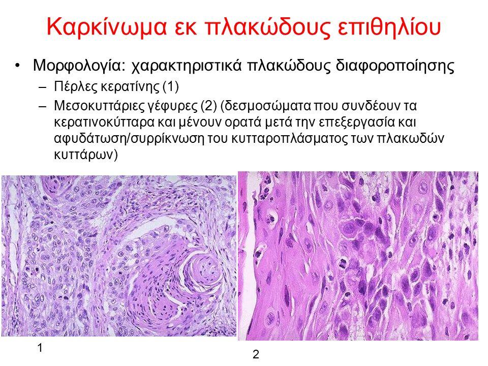 Καρκίνωμα εκ πλακώδους επιθηλίου Μορφολογία: χαρακτηριστικά πλακώδους διαφοροποίησης –Πέρλες κερατίνης (1) –Μεσοκυττάριες γέφυρες (2) (δεσμοσώματα που