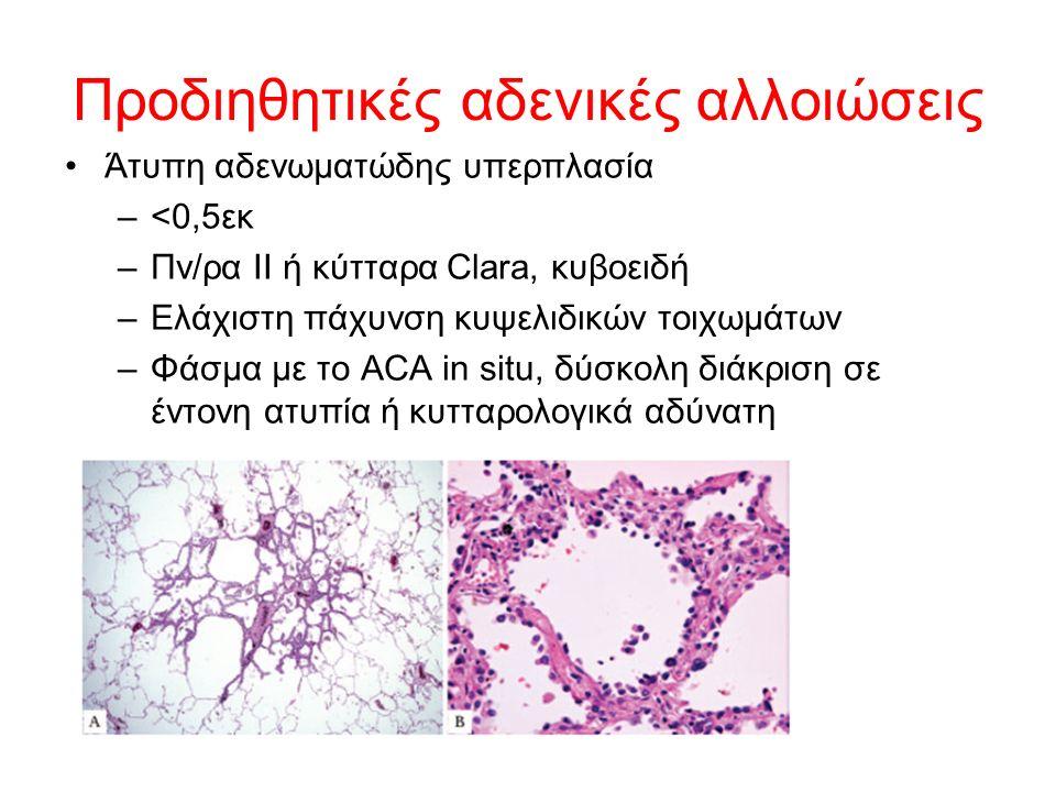 Προδιηθητικές αδενικές αλλοιώσεις Άτυπη αδενωματώδης υπερπλασία –<0,5εκ –Πν/ρα ΙΙ ή κύτταρα Clara, κυβοειδή –Ελάχιστη πάχυνση κυψελιδικών τοιχωμάτων –