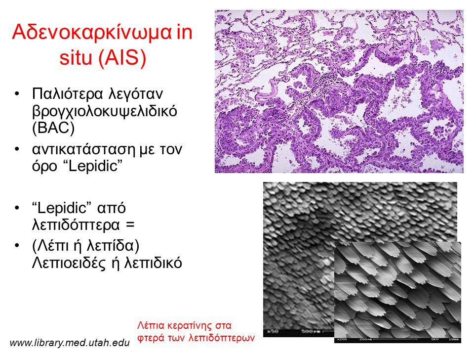 """Αδενοκαρκίνωμα in situ (AIS) Παλιότερα λεγόταν βρογχιολοκυψελιδικό (BAC) αντικατάσταση με τον όρο """"Lepidic"""" """"Lepidic"""" από λεπιδόπτερα = (Λέπι ή λεπίδα"""