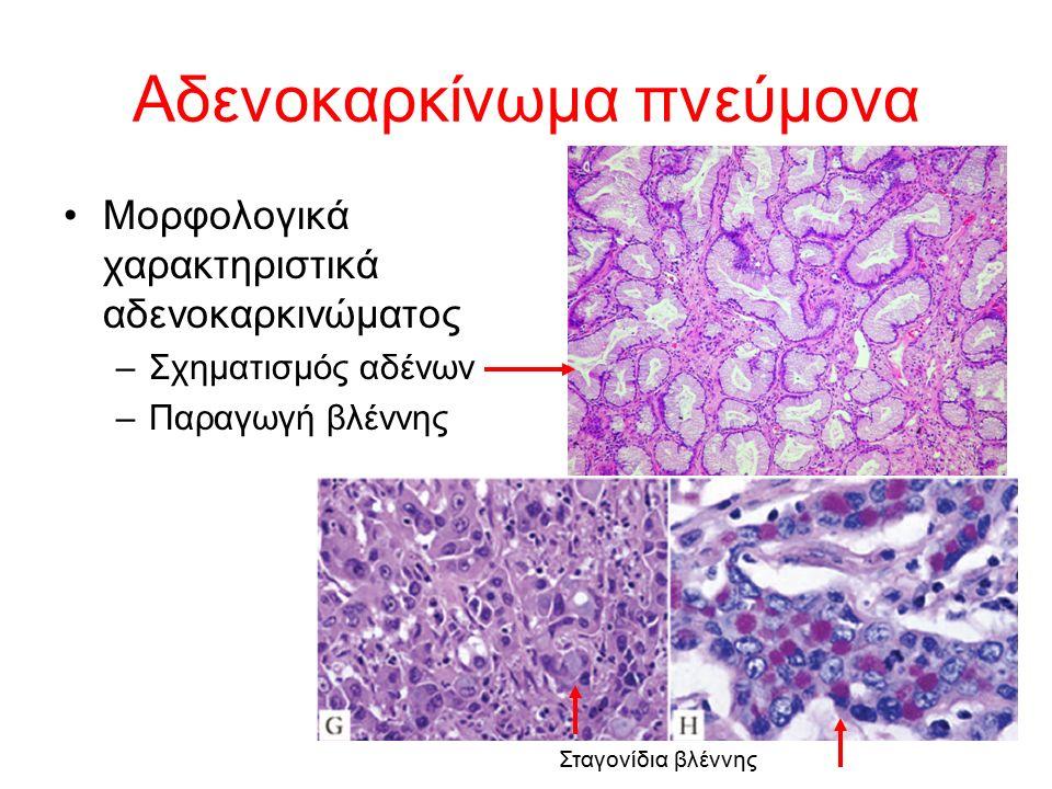 Μορφολογικά χαρακτηριστικά αδενοκαρκινώματος –Σχηματισμός αδένων –Παραγωγή βλέννης Αδενοκαρκίνωμα πνεύμονα Σταγονίδια βλέννης