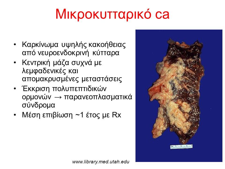 Μικροκυτταρικό ca Καρκίνωμα υψηλής κακοήθειας από νευροενδοκρινή κύτταρα Κεντρική μάζα συχνά με λεμφαδενικές και απομακρυσμένες μεταστάσεις Έκκριση πολυπεπτιδικών ορμονών → παρανεοπλασματικά σύνδρομα Μέση επιβίωση ~1 έτος με Rx www.library.med.utah.edu