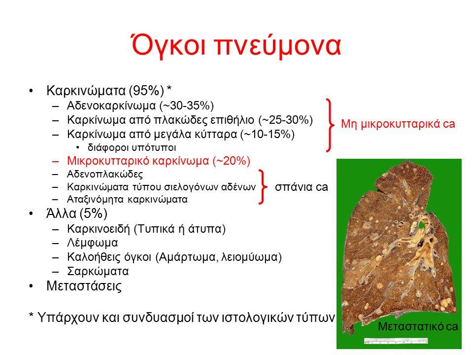 Όγκοι πνεύμονα Καρκινώματα (95%) * –Αδενοκαρκίνωμα (~30-35%) –Καρκίνωμα από πλακώδες επιθήλιο (~25-30%) –Καρκίνωμα από μεγάλα κύτταρα (~10-15%) διάφορ
