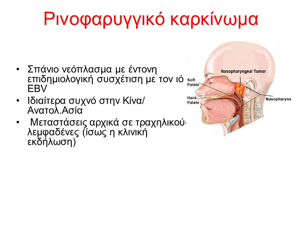Ρινοφαρυγγικό καρκίνωμα Σπάνιο νεόπλασμα με έντονη επιδημιολογική συσχέτιση με τον ιό EBV Ιδιαίτερα συχνό στην Κίνα/ Ανατολ.Ασία Μεταστάσεις αρχικά σε τραχηλικούς λεμφαδένες (ίσως η κλινική εκδήλωση)