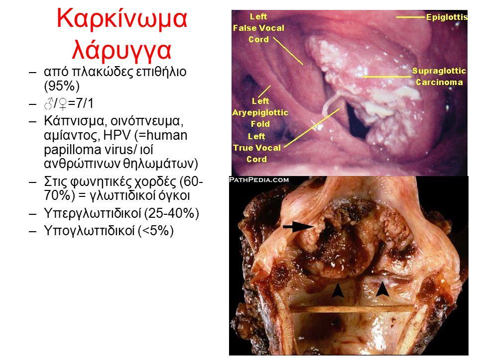 Καρκίνωμα λάρυγγα –από πλακώδες επιθήλιο (95%) –♂/♀=7/1 –Κάπνισμα, οινόπνευμα, αμίαντος, HPV (=human papilloma virus/ ιoί ανθρώπινων θηλωμάτων) –Στις