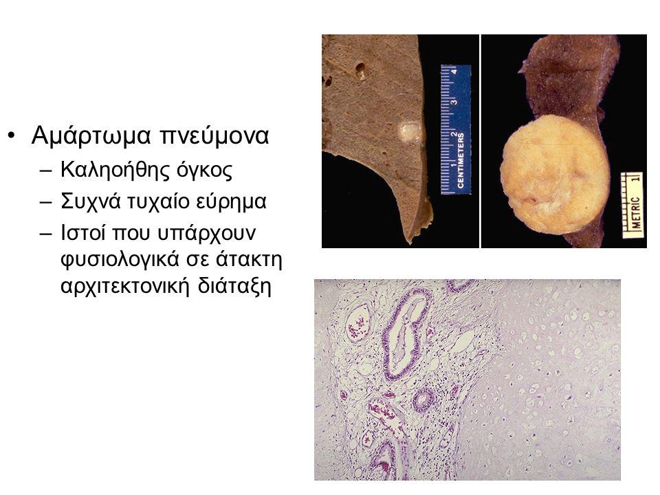 Κεντρική εντόπιση Μικροκυτταρικό ca Περιφερική εντόπιση