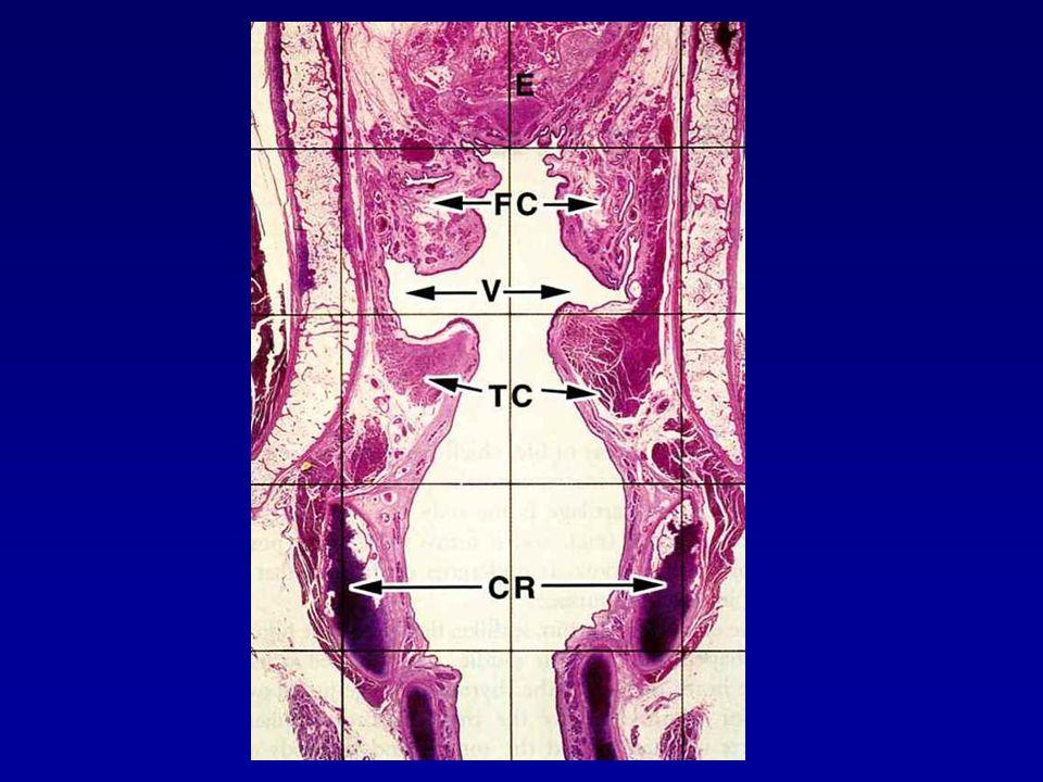 ΧΡΟΝΙΑ ΜΗ ΕΙΔΙΚΗ ΛΑΡΥΓΓΙΤΙΔΑ Λαρυγγικό οζίδιο  Πολυποειδής πάχυνση του βλεννογόνου του μέσου τριτημορίου της φωνητικής χορδής Οίδημα του χορίου Φλεγμονώδες εξίδρωμα με παρουσία ινικής Λαρυγγικός πολύποδας  Νόθες φων.χορδές ή κοιλία του Morgagni Μισχωτή αλλοίωση Αγγειοβρίθεια Τελαγγειεκτατικού Ζελατινώδους τύπου τύπου