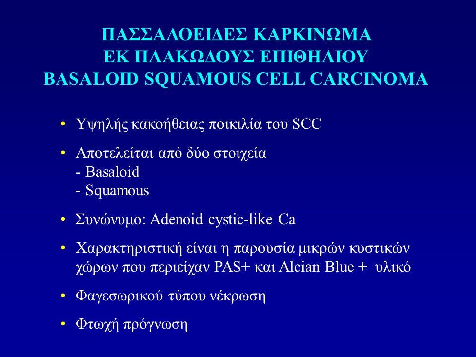Υψηλής κακοήθειας ποικιλία του SCC Αποτελείται από δύο στοιχεία - Βasaloid - Squamous Συνώνυμο: Adenoid cystic-like Ca Χαρακτηριστική είναι η παρουσία μικρών κυστικών χώρων που περιείχαν PAS+ και Αlcian Blue + υλικό Φαγεσωρικού τύπου νέκρωση Φτωχή πρόγνωση ΠΑΣΣΑΛΟΕΙΔΕΣ ΚΑΡΚΙΝΩΜΑ ΕΚ ΠΛΑΚΩΔΟΥΣ ΕΠΙΘΗΛΙΟΥ BASALOID SQUAMOUS CELL CARCINOMA