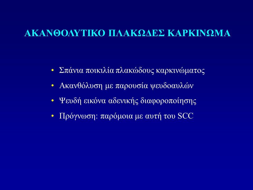Σπάνια ποικιλία πλακώδους καρκινώματος Ακανθόλυση με παρουσία ψευδοαυλών Ψευδή εικόνα αδενικής διαφοροποίησης Πρόγνωση: παρόμοια με αυτή του SCC ΑΚΑΝΘΟΛΥΤΙΚΟ ΠΛΑΚΩΔΕΣ ΚΑΡΚΙΝΩΜΑ