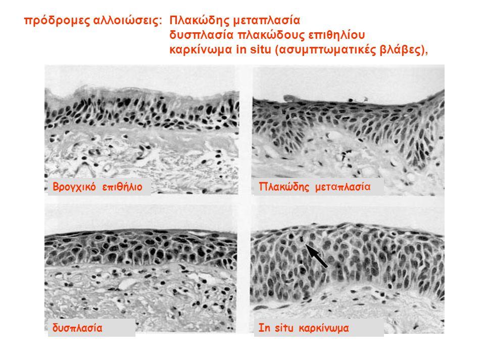 Βρογχικό επιθήλιοΠλακώδης μετ α πλασ ία δυσπλασίαIn situ καρκίνωμα πρόδρομες αλλοιώσεις: Πλακώδης μεταπλασία δυσπλασία πλακώδους επιθηλίου καρκίνωμα in situ (ασυμπτωματικές βλάβες),