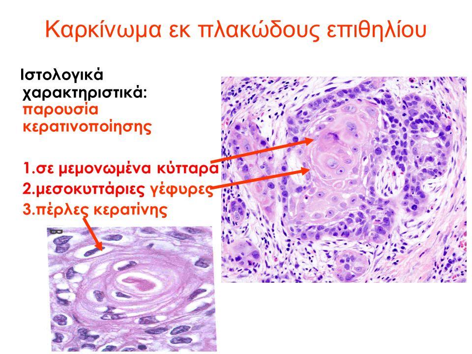 Καρκίνωμα εκ πλακώδους επιθηλίου Ιστολογικά χαρακτηριστικά: παρουσία κερατινοποίησης 1.σε μεμονωμένα κύτταρα 2.μεσοκυττάριες γέφυρες 3.πέρλες κερατίνης