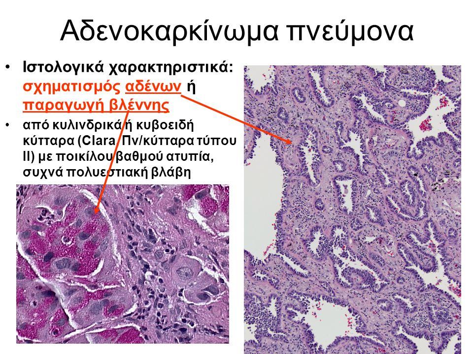 Αδενοκαρκίνωμα πνεύμονα Ιστολογικά χαρακτηριστικά: σχηματισμός αδένων ή παραγωγή βλέννης από κυλινδρικά ή κυβοειδή κύτταρα (Clara, Πν/κύτταρα τύπου ΙΙ) με ποικίλου βαθμού ατυπία, συχνά πολυεστιακή βλάβη