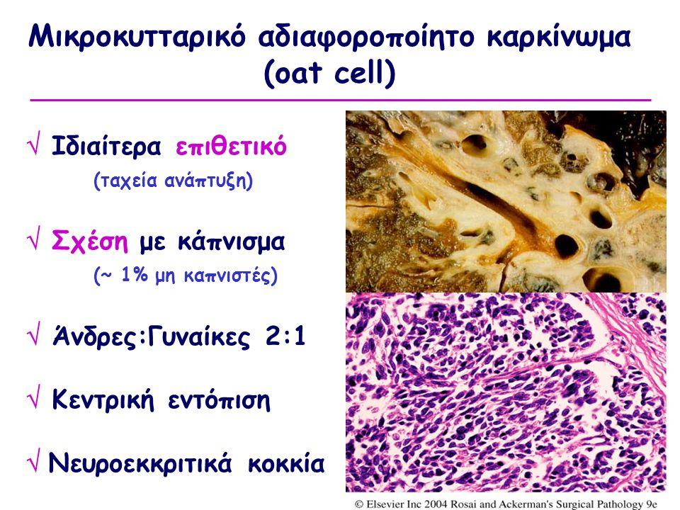 Μικροκυτταρικό αδιαφοροποίητο καρκίνωμα (oat cell)  Ιδιαίτερα επιθετικό (ταχεία ανάπτυξη)  Σχέση με κάπνισμα (~ 1% μη καπνιστές)  Άνδρες:Γυναίκες 2:1  Κεντρική εντόπιση  Νευροεκκριτικά κοκκία