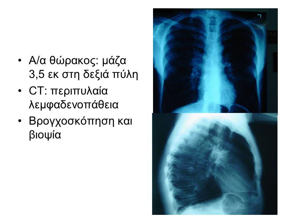 Α/α θώρακος: μάζα 3,5 εκ στη δεξιά πύλη CT: περιπυλαία λεμφαδενοπάθεια Βρογχοσκόπηση και βιοψία